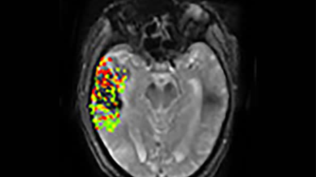 New imaging method may predict risk of post-treatment brain bleeding after stroke