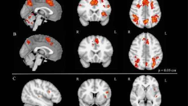 Brain imaging shows enhanced executive brain function in people with musical training