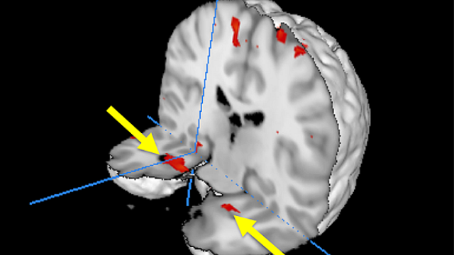 Brain scans of passengers who experienced nightmare flight offer new clues about trauma memory