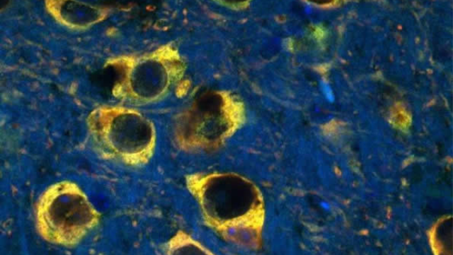 The connection between excess iron and Parkinson's disease