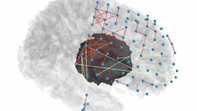 Researchers use network science to help pinpoint source of seizures