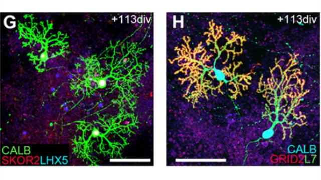 Growing functioning brain tissue in 3D