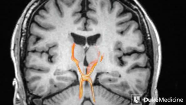 MRI technology reveals deep brain pathways in unprecedented detail