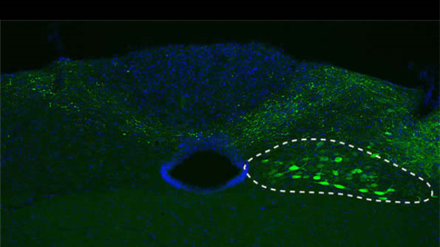 Parkinson's disease: New insights into a traveling protein