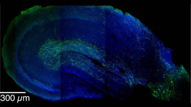 Cellular 'switch' helps brain distinguish safety from danger, new study finds