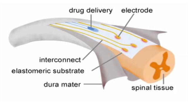 Neuroprosthetics for paralysis: A new implant on the spinal cord