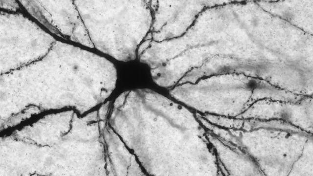 LAC-king a Single Molecule Could Predispose Major Depressive Disorder