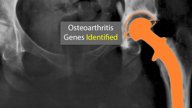 Largest Genetic Study of Osteoarthritis Advances Research