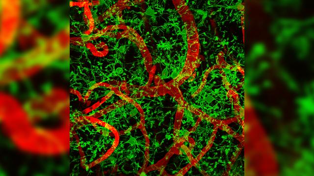 Leprosy Bacteria Hijack Immune System Macrophages