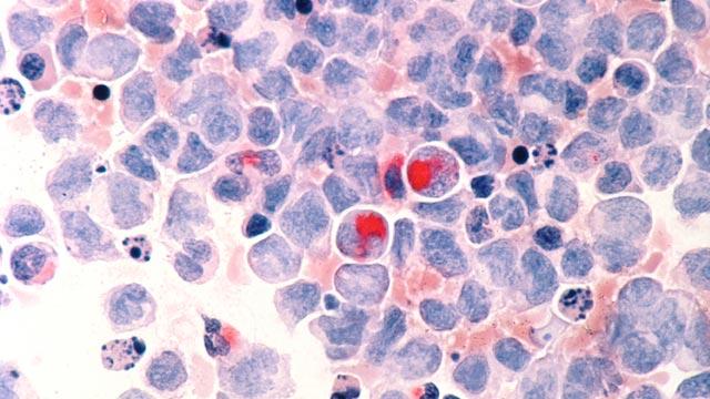 Leukemia Epigenetics in Focus