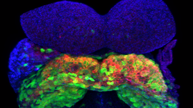 Live 3D Imaging Highlights Cellular Activity During Embryonic Heart Development