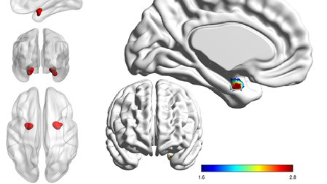 Looking Inside the Brain to Distinguish Bipolar from Depression