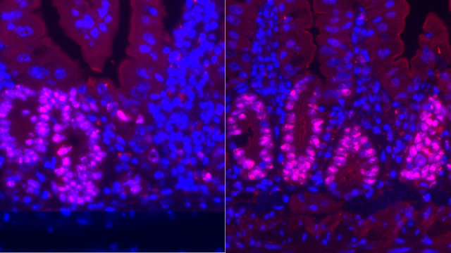 Low-calorie Diet Enhances Intestinal Regeneration After Injury