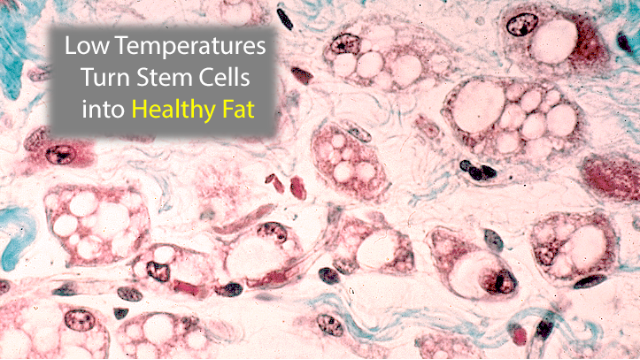 Low Temperatures Turn Stem Cells into Calorie-Burning Fat