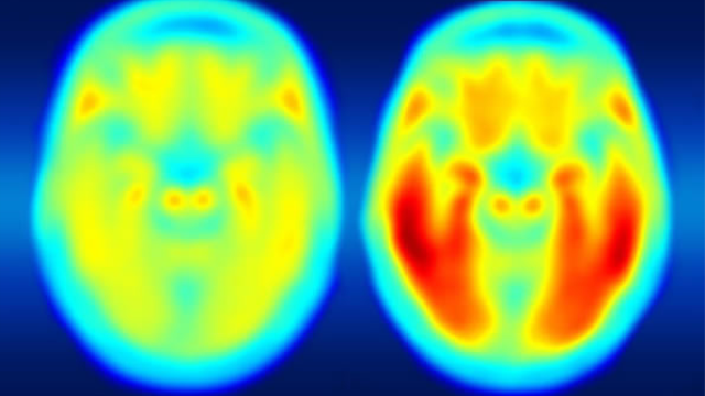 Brain imaging links Alzheimer's decline to tau protein