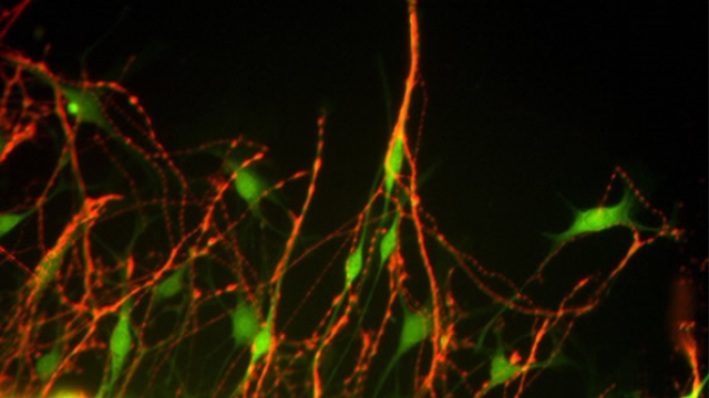 Origin of synaptic pruning process linked to learning, autism and schizophrenia identified