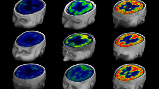 Method for measuring awareness or its impending return in brain-injured patients