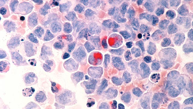 Major New Vulnerability of Childhood Leukemia Uncovered