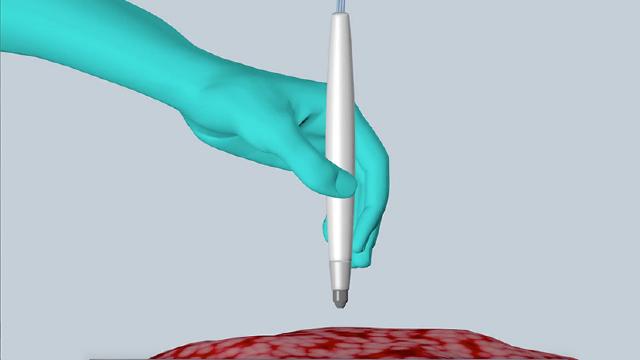 MasSpec Pen Accurately Identifies Cancer in Seconds