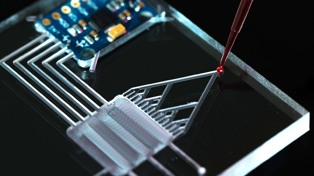 Microfluidic Diagnostic Tools: Could Doctors Soon Be Obsolete?