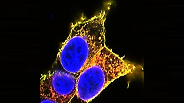 Miscarriage Cause and Key Cellular Targets of Potential Drugs Uncovered