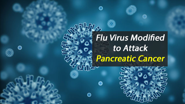 Modified Flu Virus Used to Attack Pancreatic Cancer