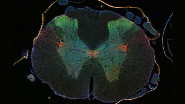 Regeneration in a hostile environment: cancer drug promotes regeneration of damaged neurons