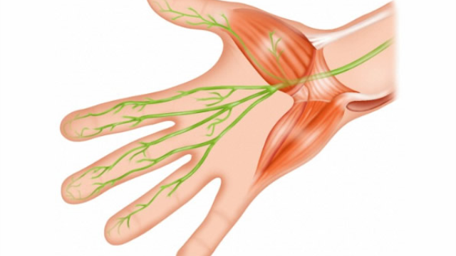 Study shows association between migraine and carpal tunnel syndrome