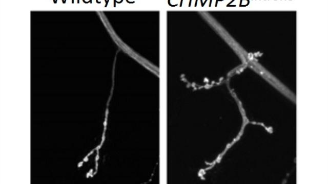 Novel steps in frontotemporal dementia progression identified