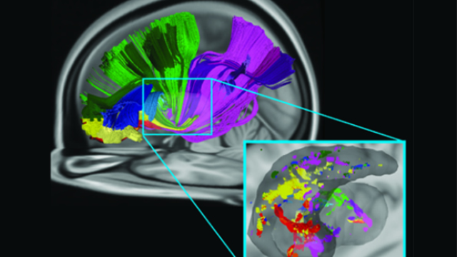 New way several brain areas communicate identified