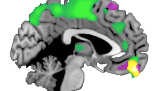 Brain structure varies depending on how trusting people are of others, study shows