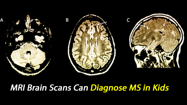 MRI Brain Scans Can Spot MS in Kids
