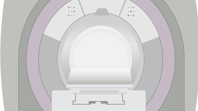 MRI Scan Spots HIV in the Brain
