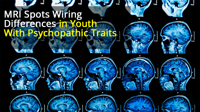 MRI Study Shows Brains of Young People With Severe Behavioural Problems 'Wired Differently'