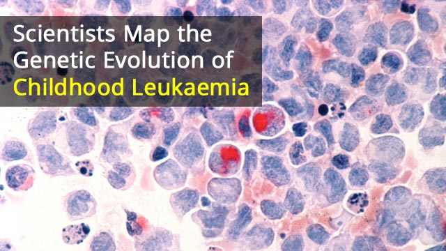 Mutation May Trigger Development of Childhood Leukaemia