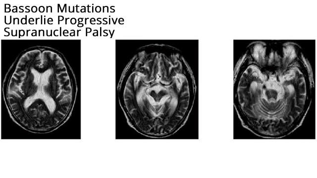 Mutations in Bassoon Gene Underlie Progressive Supranuclear Palsy