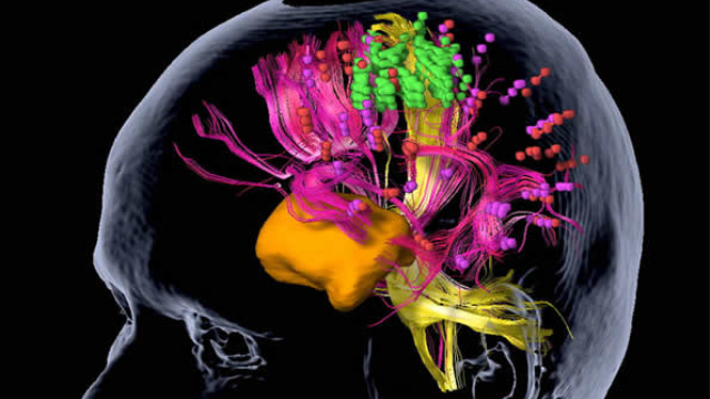 Brain tumors: Mapping of motor areas in the brain by magnetic stimulation