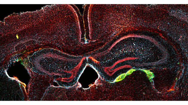 Blood to feeling: Scientists turn adult human blood cells into neurons