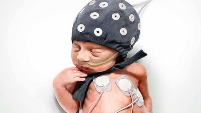 Earthquakes - an unexpected help in interpreting the brain activity of premature babies