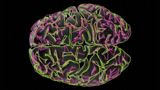 Study reveals autism's 'noisy' secret