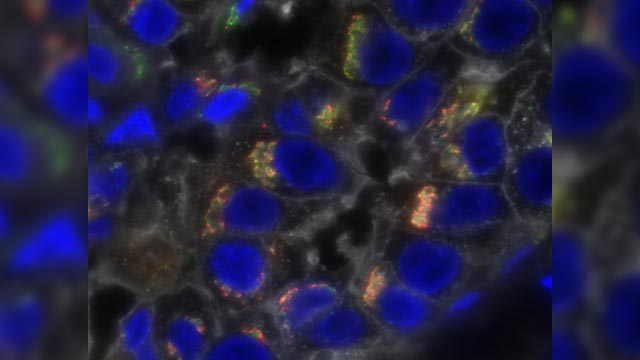 Nanoparticle-Encased Drug Shows Promise as Triple-Negative Breast Cancer Therapy