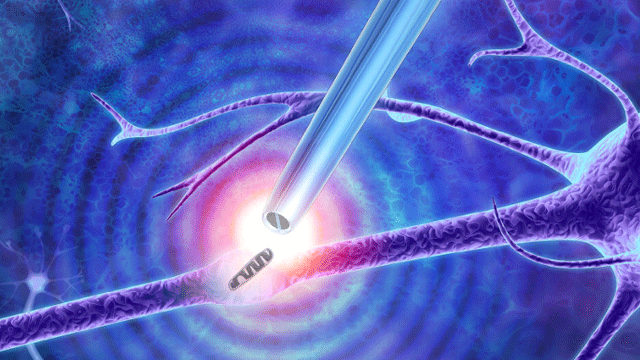 Nanoscale Tweezers Can Perform Single-molecule 'Biopsies'