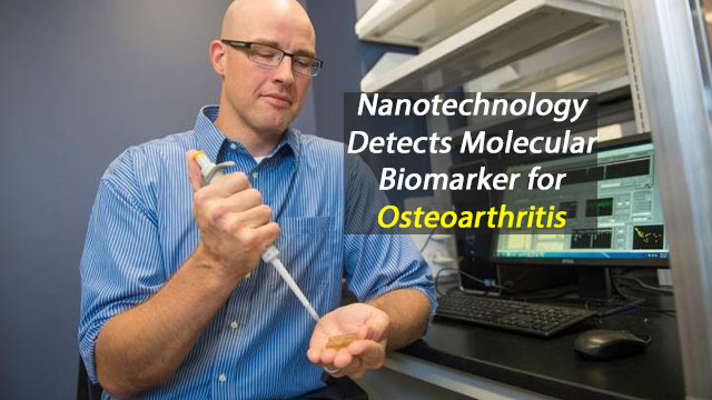 Nanotechnology Detects Molecular Biomarker for Osteoarthritis