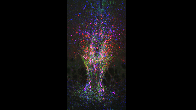 Neurocircuitry Underlying Arousal Uncovered