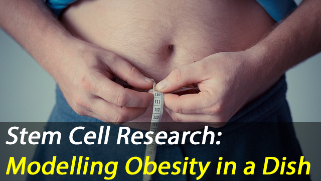 Neuroendocrine stem cells: a new model to tackle the obesity crisis.
