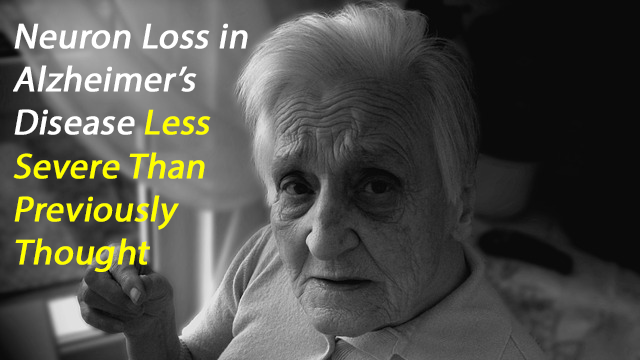 Neuronal Loss in Alzheimer's Disease Only Moderate