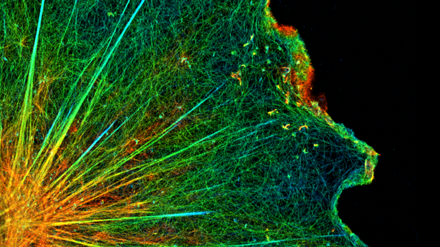 Neuroscience at Super-Resolution [Image Gallery]