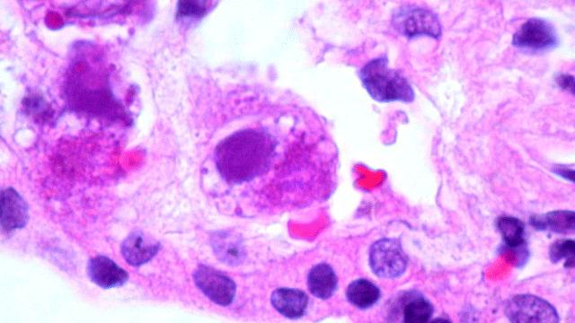 New Antiviral Targets Uncovered in Herpesvirus Study