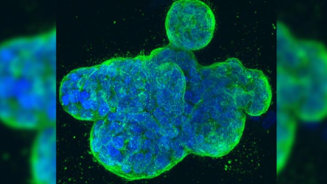 New Approach Sheds Light on the Effects of Anti-Cancer Drugs