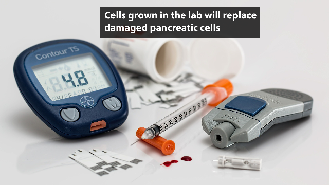 New Cell Therapy for Diabetes Being Tested